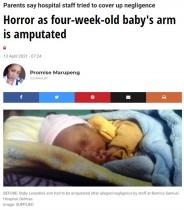 【海外発!Breaking News】点滴の種類を間違えた? 脱水症状で入院した新生児の腕が切断される事態に(南ア)