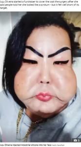 頬が腫れて垂れ下がってしまったジュジュさん(画像は『The Sun 2021年4月16日付「AN'T FACE IT Trans woman who injected industrial silicone into her face forced to live with droopy cheeks as she can't afford £6k op」(Credit: Newsflash)』のスクリーンショット)