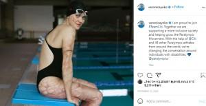 傷痕を隠すことをやめたというヴェロニカさん(画像は『Veronica Yoko Plebani 2020年12月10日付Instagram「I am proud to join #TeamCiti.」』のスクリーンショット)