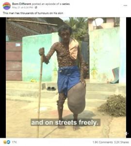 左脚太ももに30キロの腫瘍を抱えるディワカールさん(画像は『Born Different 2021年5月21日付Facebook「This man has thousands of tumours on his skin」』のスクリーンショット)