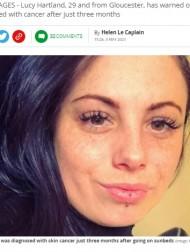 【海外発!Breaking News】3か月毎日15分の日焼け用ベッド使用で、29歳女性が皮膚がんに(英)