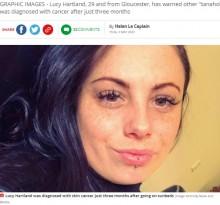 3か月毎日15分の日焼け用ベッド使用で、29歳女性が皮膚がんに(英)