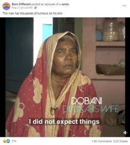 「なんとか手術を」と語る妻のドバニさん(画像は『Born Different 2021年5月21日付Facebook「This man has thousands of tumours on his skin」』のスクリーンショット)