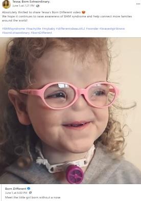 最初の人工鼻の手術を受けた後のテッサちゃん(画像は『Tessa; Born Extraordinary 2021年6月5日付Facebook「Absolutely thrilled to share Tessa's Born Different video」』のスクリーンショット)