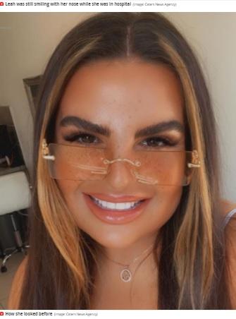 鼻のフィラー注射をする前のリアさん(画像は『Mirror 2021年6月18日付「Woman almost loses nose and lip after catching flesh eating bug from botched filler」(Image: Caters News Agency)』のスクリーンショット)
