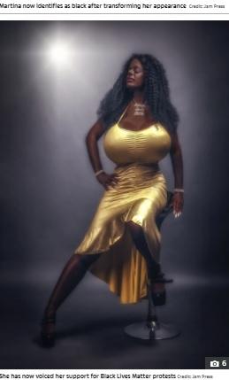【海外発!Breaking News】黒い肌とタイタニックのような巨大な胸を目指す女性に「病気」「愚か」の声(独)