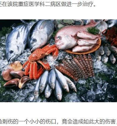 傷がある時は、魚介類の取り扱いに注意が必要(画像は『网易 2021年5月23日付「危急丨临桂一厨师被海鱼扎伤手指,左臂被两次截肢保命...」(每日桂林)』のスクリーンショット)