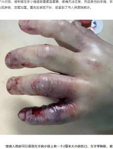 腫れあがり、変色した左手(画像は『网易 2021年5月23日付「危急丨临桂一厨师被海鱼扎伤手指,左臂被两次截肢保命...」(每日桂林)』のスクリーンショット)