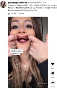 口の中の様子を見せるアリーシャさん(画像は『princessglitterhead 2021年4月23日付「Answer to @kelmar1970 YES!!!」』のスクリーンショット)