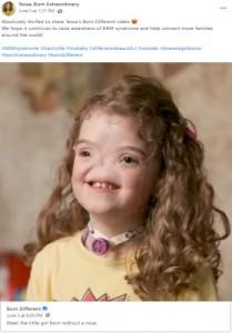 病気には屈しないと語るテッサちゃん(画像は『Tessa; Born Extraordinary 2021年6月5日付Facebook「Absolutely thrilled to share Tessa's Born Different video」』のスクリーンショット)