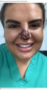 病院で1か月以上、毎日高気圧酸素療法を続けたリアさん(画像は『Mirror 2021年6月18日付「Woman almost loses nose and lip after catching flesh eating bug from botched filler」(Image: Caters News Agency)』のスクリーンショット)