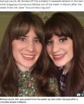 【海外発!Breaking News】ワニに襲われた女性、双子の姉妹が顔面パンチで救出「アドレナリンが出た」(メキシコ)