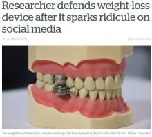 【海外発!Breaking News】肥満改善のために開発された減量デバイス 「まるで拷問器具」と批判の声(ニュージーランド)