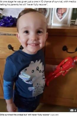 【海外発!Breaking News】1歳でボタン電池を誤飲し28回の手術を受けた男児、5歳になるも「100%の回復は望めず」(英)