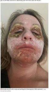 ホラーコメディ映画『ビートルジュース』のような顔に(画像は『Mirror 2021年7月12日付「Woman 'looked like Beetlejuice' for a week after traumatic £1,800 face peel」(Image: Kennedy News and Media)』のスクリーンショット)