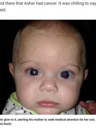 【海外発!Breaking News】白く反射する片目に違和感を覚えた母親 何気なく撮った写真で生後3か月の息子にがんが発覚(米)