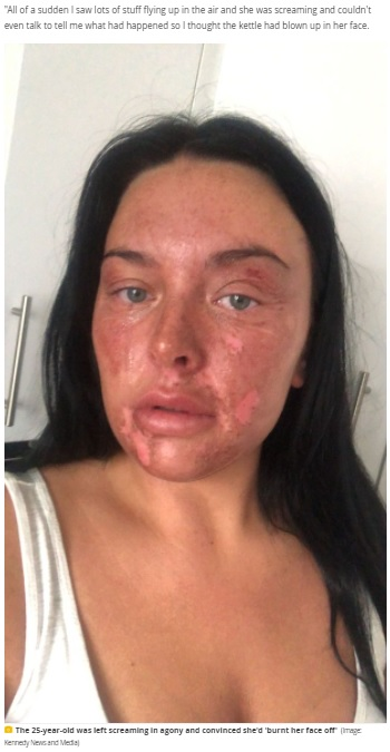 ひどいやけどを負ってしまったシャンテルさん(画像は『Manchester Evening News 2021年7月15日付「'Traumatised' mum vows never to eat an egg again after microwave poaching hack leaves her with burns」(Image: Kennedy News and Media)』のスクリーンショット)