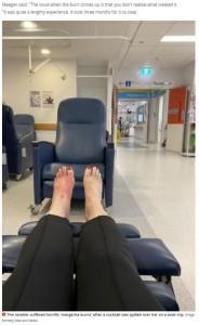 医師も原因が分からず、病院で6時間の検査を受けたミーガンさん(画像は『Mirror 2021年7月5日付「Woman suffers horrific 'margarita burns' after spilling cocktail on foot」(Image: Kennedy News and Media)』のスクリーンショット)