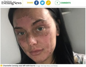 やけどは顔だけではなく首にも及んだ(画像は『Manchester Evening News 2021年7月15日付「'Traumatised' mum vows never to eat an egg again after microwave poaching hack leaves her with burns」(Image: Kennedy News and Media)』のスクリーンショット)