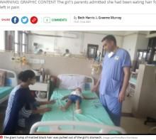 【海外発!Breaking News】5歳女児の胃から毛髪の塊1.5キロが摘出される 「2歳半から食べていた」(印)