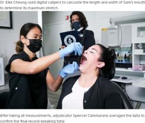 【海外発!Breaking News】「世界で最も大きな口」を持つ女性、開口時6.52センチでギネス世界記録に(米)<動画あり>
