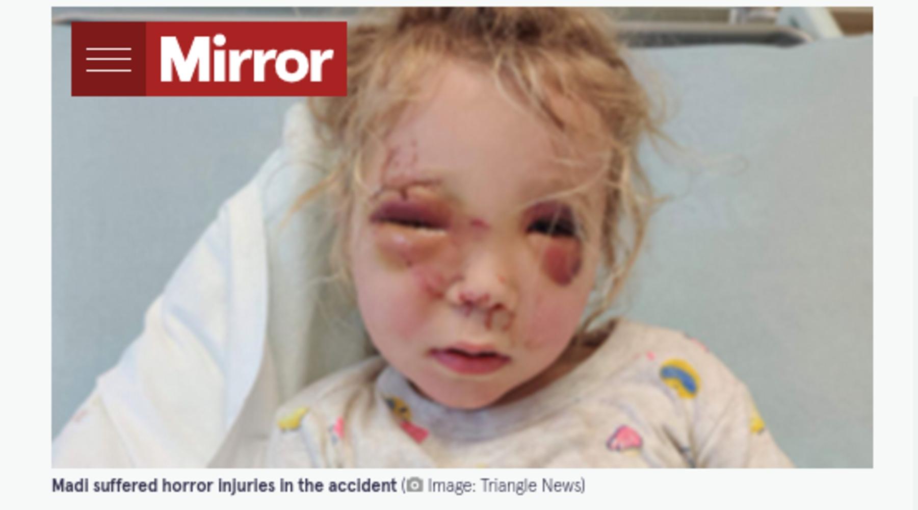 馬に顔を蹴られ大怪我をしたマディソンちゃん(画像は『The Mirror 2021年9月4日付「Girl, 2, fights for life after being kicked in face by horse while walking with dad」(Image: Triangle News)』のスクリーンショット)