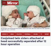 頭部が結合した双子姉妹、分離手術が成功し初めてお互いの顔を見つめ合う(イスラエル)<動画あり>