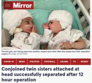 【海外発!Breaking News】頭部が結合した双子姉妹、分離手術が成功し初めてお互いの顔を見つめ合う(イスラエル)<動画あり>