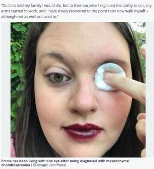 【海外発!Breaking News】がんで眼球を失った女性、目の穴からキャンドルを吹き消す(英)<動画あり>