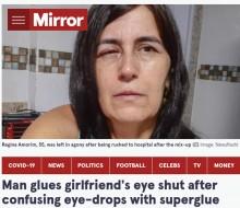 【海外発!Breaking News】目薬と間違えて瞬間接着剤を目にさした女性「目が爆発するのではないかと思った」(ブラジル)