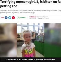 【海外発!Breaking News】動物園のふれあい体験でヘビが5歳女児の顔に噛みつく ランチで食べたチキンの匂いが原因か(露)<動画あり>