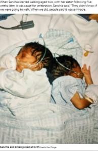 手術前の双子(画像は『The Sun 2021年9月21日付「'ALWAYS BE CLOSE' Miracle conjoined twins say we're so grateful we were separated but we still sleep like we're joined together」(Credit: Paul Tonge)』のスクリーンショット)