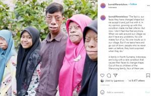 """【海外発!Breaking News】顔が変形し""""呪われている""""と言われる家族「運命を受け入れて前向きに生きる」(インドネシア)<動画あり>"""