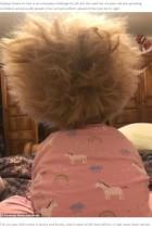 「櫛でとかせない頭髪症候群」の明るい6歳女児に「ゴージャス」の声(英)