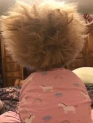 【海外発!Breaking News】「櫛でとかせない頭髪症候群」の明るい6歳女児に「ゴージャス」の声(英)