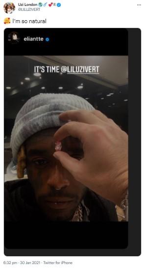 埋め込む前のピンクダイヤモンドを額に合わせる様子(画像は『Uzi London 2021年1月30日付Twitter「I'm so natural」』のスクリーンショット)