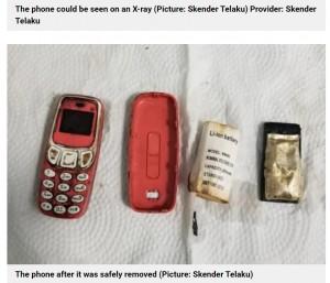 【海外発!Breaking News】小型の携帯電話を飲み込んだ男性 医師が口から取り出す(コソボ)
