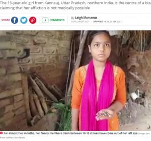 【海外発!Breaking News】左目から石の涙を流す15歳少女、医師は「説明がつかない」(印)<動画あり>