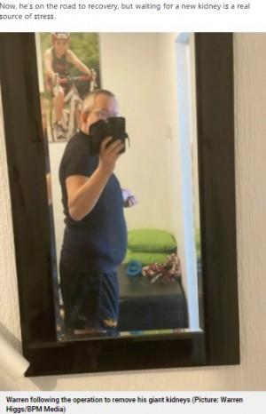 【海外発!Breaking News】肥大した2つの腎臓が35キロと世界最大! 摘出手術を受けた54歳男性(英)