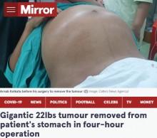 【海外発!Breaking News】新生児3人分、45歳男性の腹部から巨大な腫瘍を摘出(印)