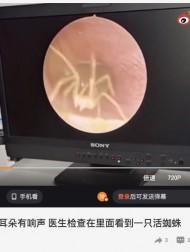 【海外発!Breaking News】耳のかゆみで病院を訪れた女性、外耳道を行き来するクモを検査のカメラが捉える(中国)<動画あり>