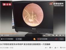 耳のかゆみで病院を訪れた女性、外耳道を行き来するクモを検査のカメラが捉える(中国)<動画あり>