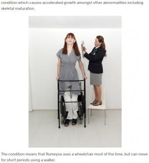 【海外発!Breaking News】身長215.16cm! 世界で最も背の高い存命中の女性「記録は誇り」(トルコ)<動画あり>
