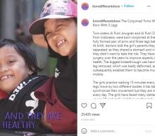 【海外発!Breaking News】3本脚で生まれた結合双生児、「生存できない」と言われるも8歳に(インドネシア)<動画あり>